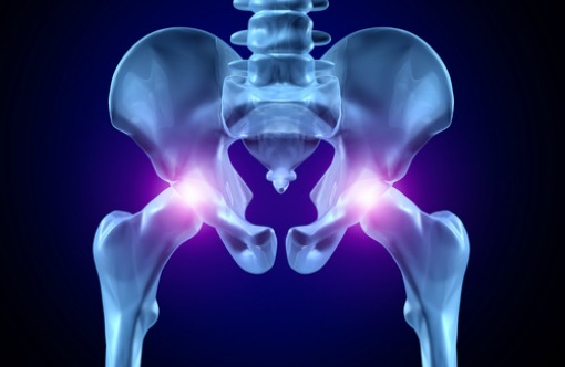 Joint Implants